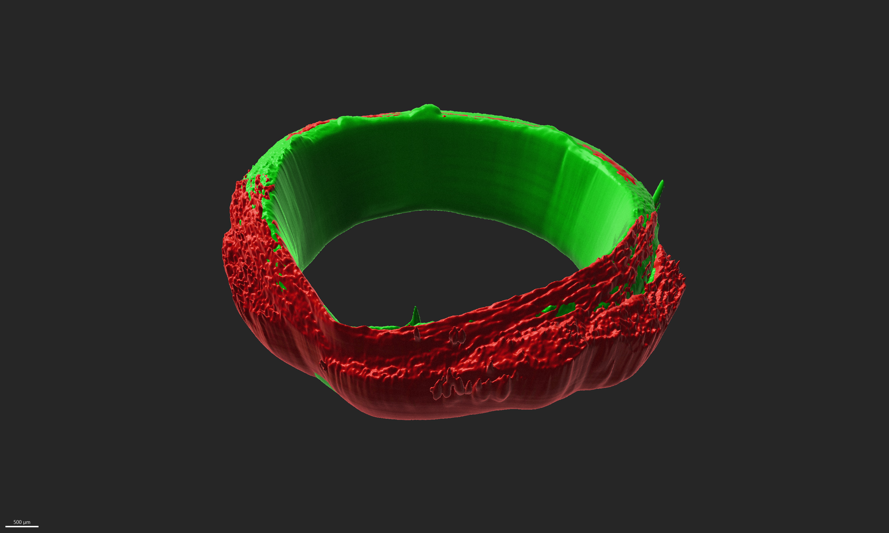skeletal muscle ring-shaped tissues