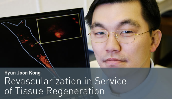 Revascularization in Service of Tissue Regeneration